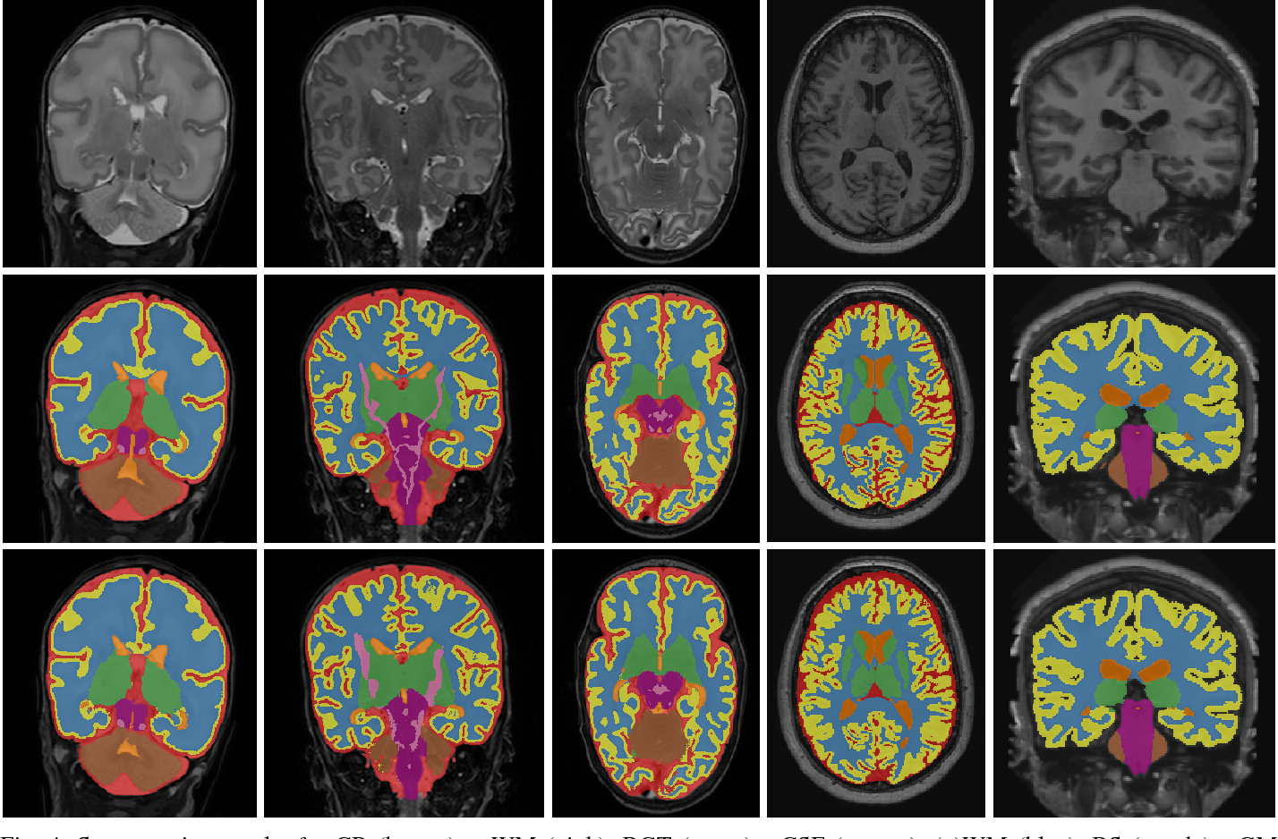 Figure 4 for Automatic segmentation of MR brain images with a convolutional neural network
