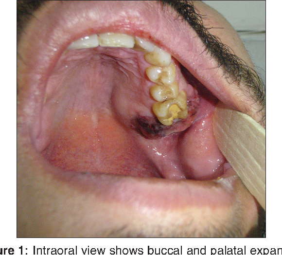 Figure 1: Intraoral view shows buccal and palatal expansion in the left maxillary region and the exophytic ulcerated mass