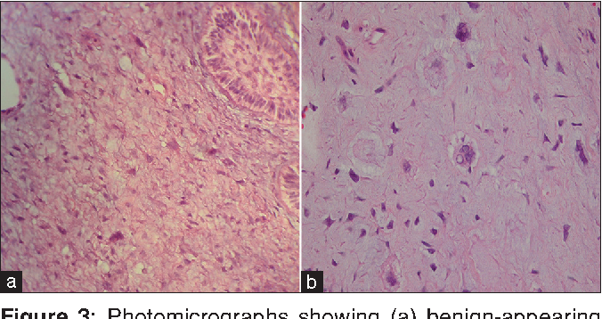 Figure 3: Photomicrographs showing (a) benign‑appearing epithelial islands and highly cellular mesenchymal component (H and E, original magnification×100); (b) pleomorphism and scattered bizarre cells in mesenchymal component (H and E, original magnification×100)