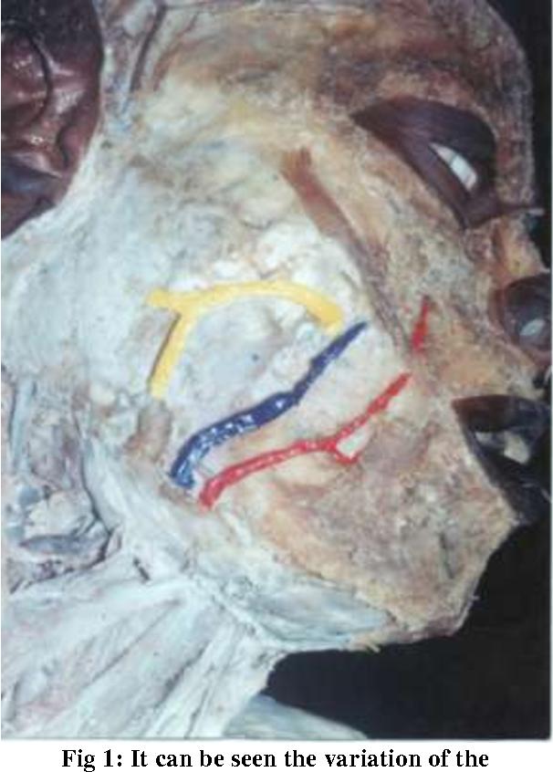 Anatomical variation of submandibular gland duct - Semantic Scholar