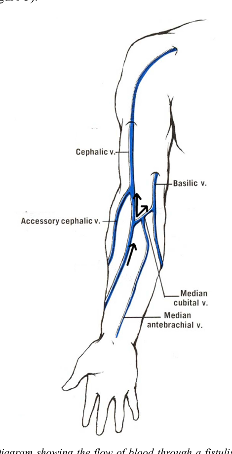 diagram showing the flow of blood through a fistulised cephalic vein  blood