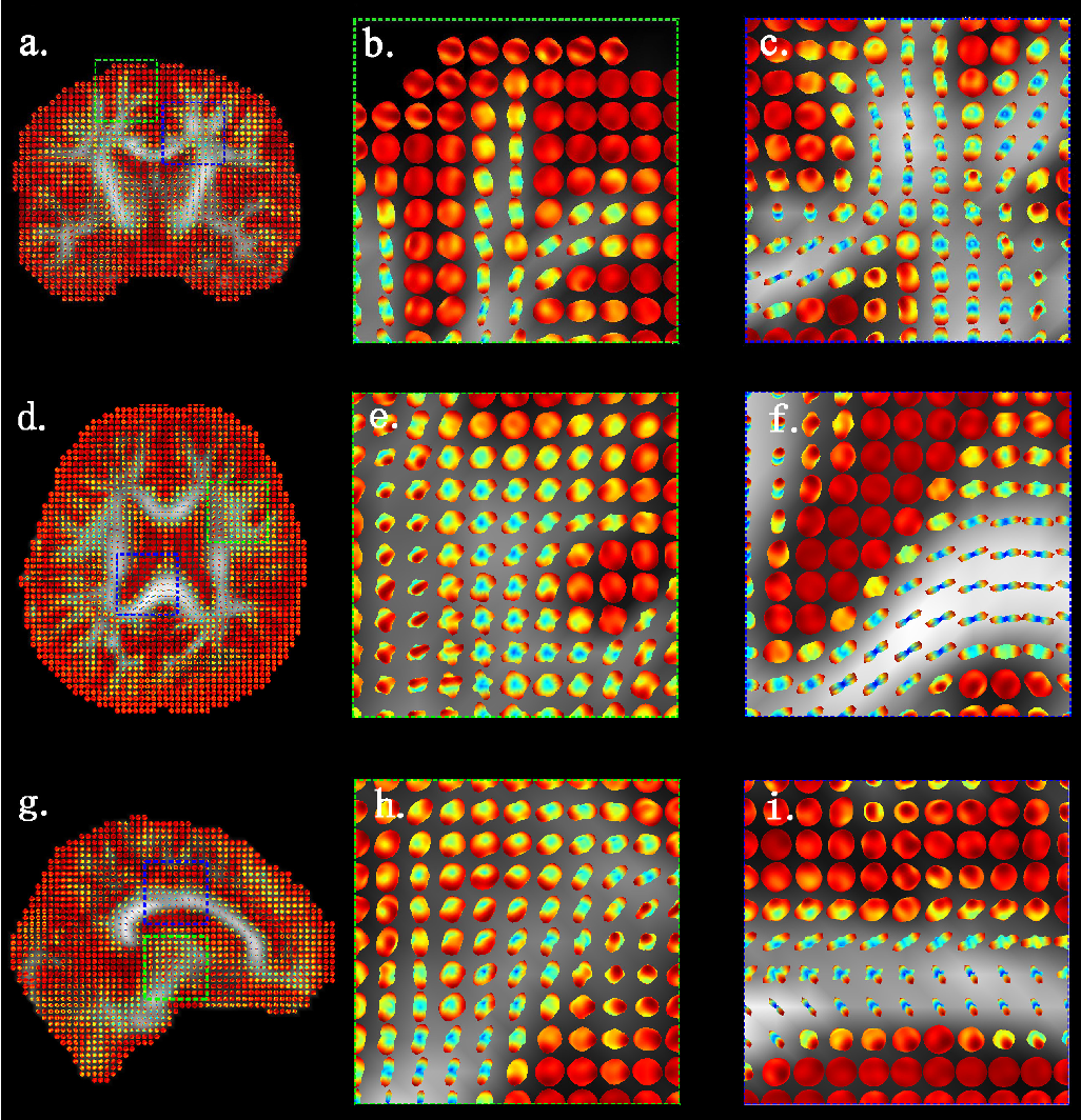 Figure 2 for Bayesian Estimation of White Matter Atlas from High Angular Resolution Diffusion Imaging