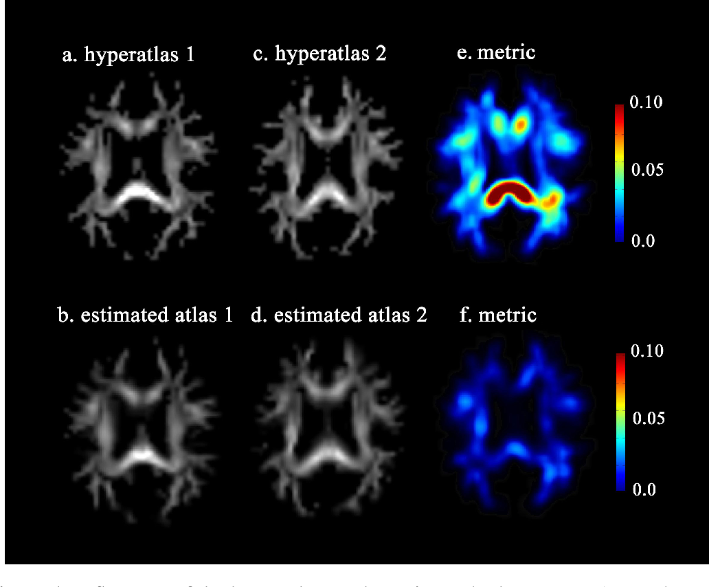 Figure 4 for Bayesian Estimation of White Matter Atlas from High Angular Resolution Diffusion Imaging