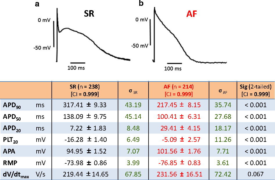 Fig. 4 a Characteristic traces of two human right atrial action potentials representative for tissue from a sinus rhythm (SR) and an atrial fibrillation (AF) patient. b Mean values ± standard error of the mean, n number of patients; σSR and σAF, standard deviation for SR and AF, respectively. See legend of Fig. 1 for explanation of abbreviations