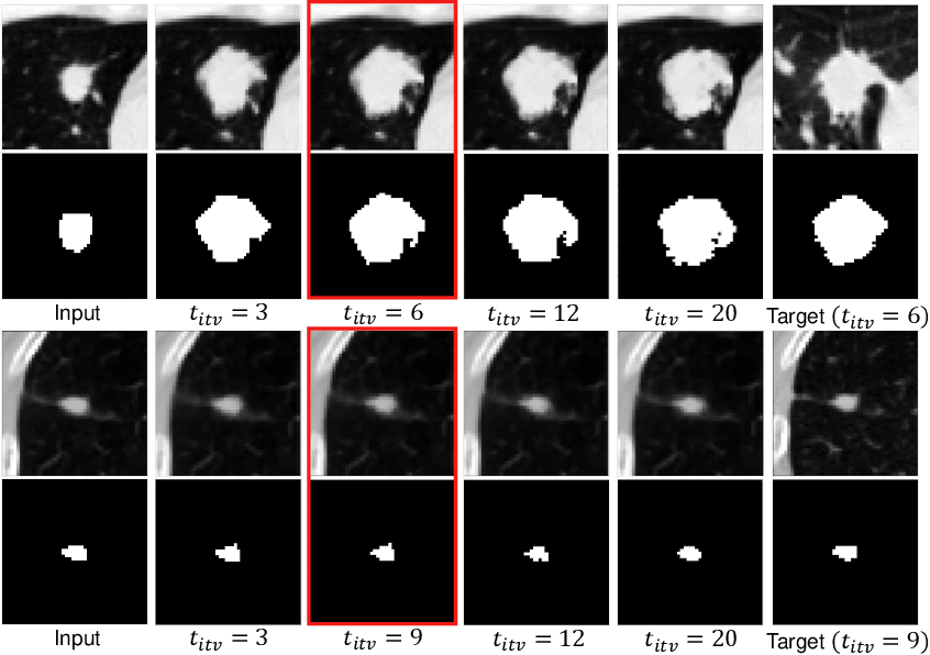 Figure 4 for Malignancy-Aware Follow-Up Volume Prediction for Lung Nodules