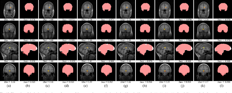 Figure 2 for Unsupervised End-to-end Learning for Deformable Medical Image Registration