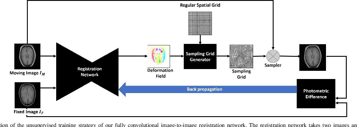 Figure 3 for Unsupervised End-to-end Learning for Deformable Medical Image Registration