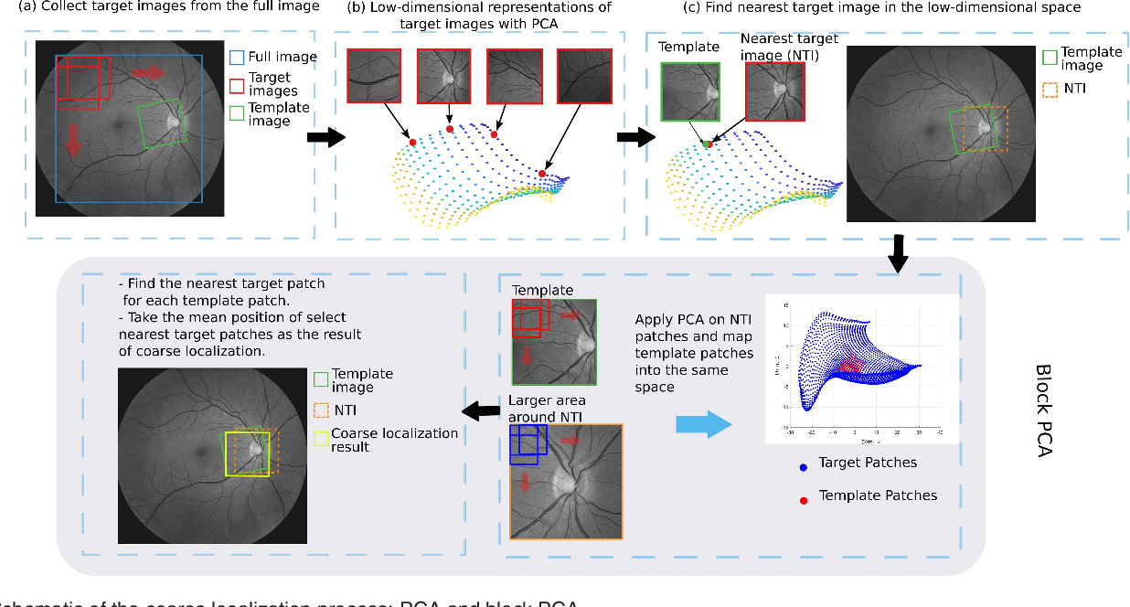 Figure 3 for RetinaMatch: Efficient Template Matching of Retina Images for Teleophthalmology