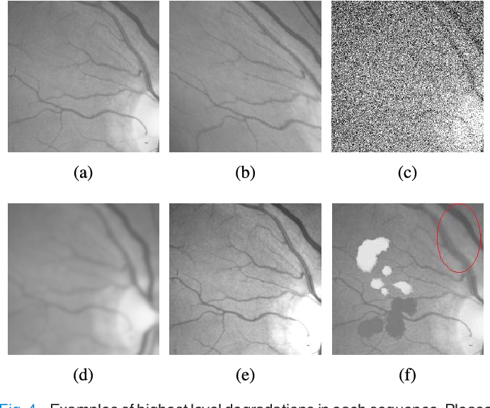 Figure 4 for RetinaMatch: Efficient Template Matching of Retina Images for Teleophthalmology