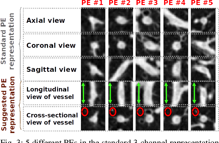 Figure 4 for Convolutional Neural Networks for Medical Image Analysis: Full Training or Fine Tuning?