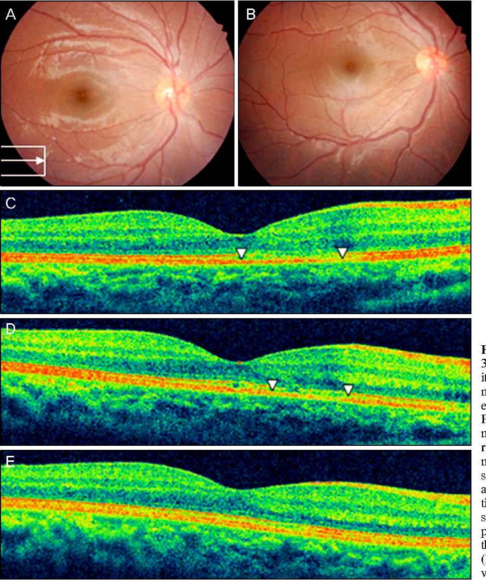 Evaluation Of The Central Macula In Commotio Retinae Not Associated