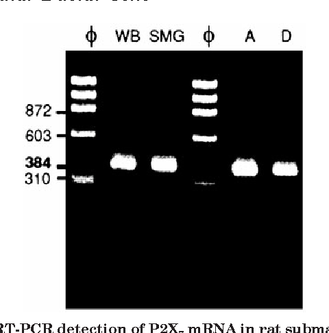 FIG. 5. RT-PCR detection of P2X7 mRNA in rat submandibular gland cells. The P2X7 transcript is expressed in the rat submandibular gland (SMG), and in both acinar (A) and ductal (D) cells purified from the same. RT-PCR detection of mRNA transcripts encoding this receptor is illustrated in an ethidium bromide-stained, 1.8% agarose gel of the corresponding PCR products. Rat whole brain (WB) RNA was used as a positive control. The ladder (f) is the fX174 HaeIII digest, with corresponding sizes in base pairs indicated to the left. The predicted size of the amplified product is 384 base pairs.
