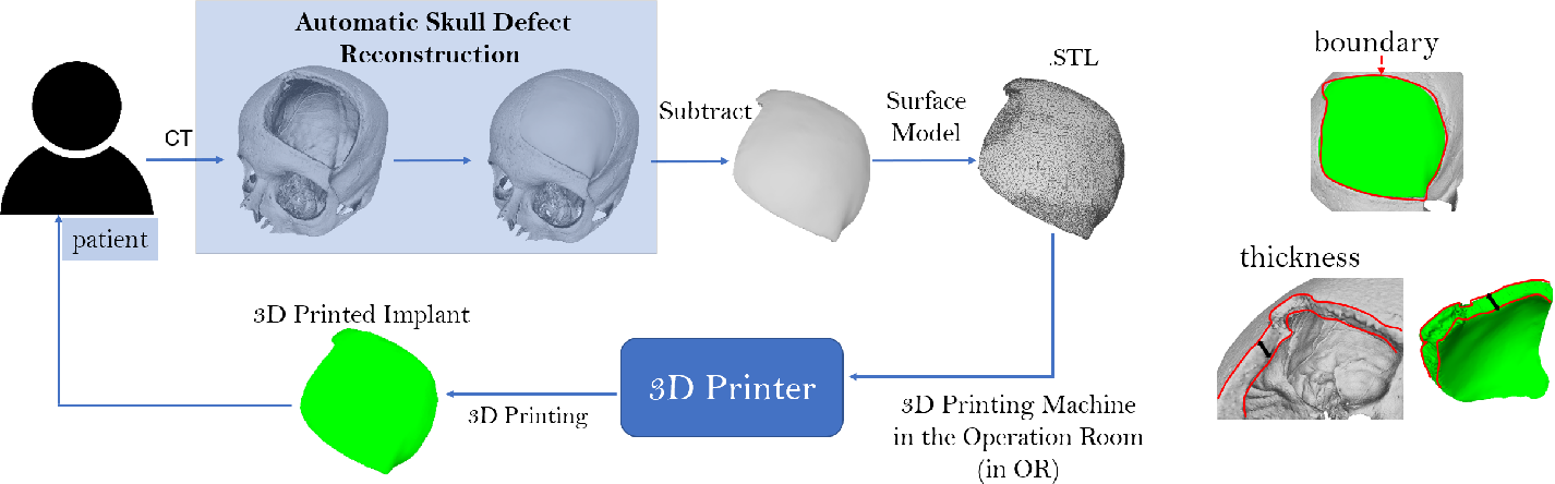 Figure 1 for An Online Platform for Automatic Skull Defect Restoration and Cranial Implant Design