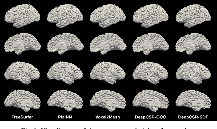 Figure 3 for PialNN: A Fast Deep Learning Framework for Cortical Pial Surface Reconstruction