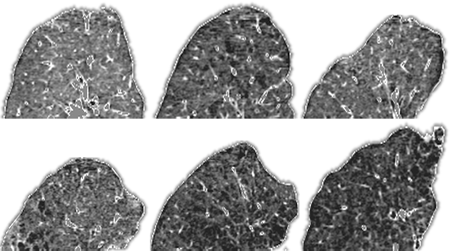 Figure 1 for Feature learning based on visual similarity triplets in medical image analysis: A case study of emphysema in chest CT scans