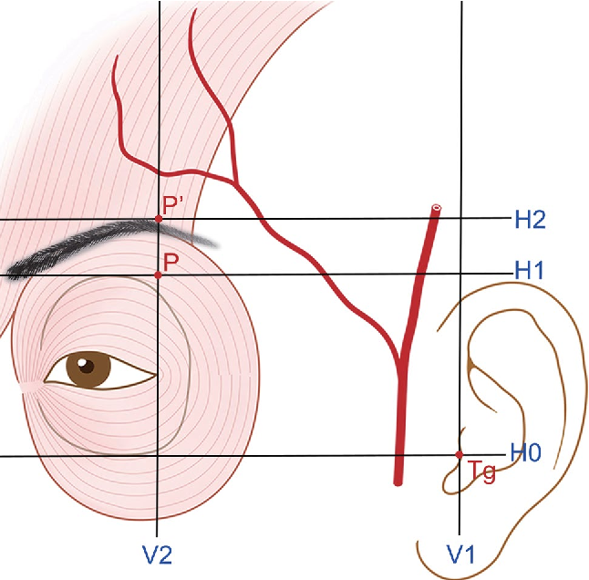 Frontal branch of the superficial temporal artery: anatomical study ...