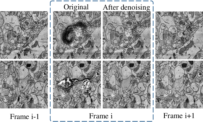 Figure 3 for Advanced Deep Networks for 3D Mitochondria Instance Segmentation