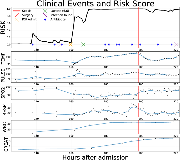 Figure 1 for An Improved Multi-Output Gaussian Process RNN with Real-Time Validation for Early Sepsis Detection
