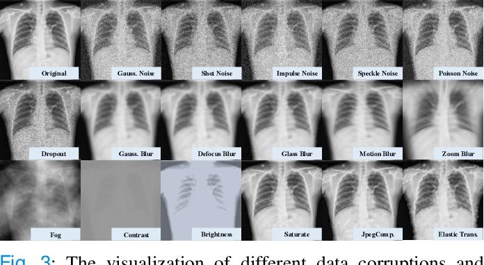 Figure 3 for Towards to Robust and Generalized Medical Image Segmentation Framework