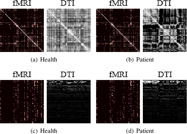 Figure 3 for Multiplex Graph Networks for Multimodal Brain Network Analysis