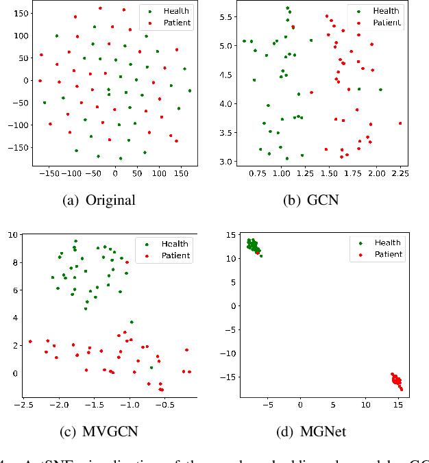 Figure 4 for Multiplex Graph Networks for Multimodal Brain Network Analysis