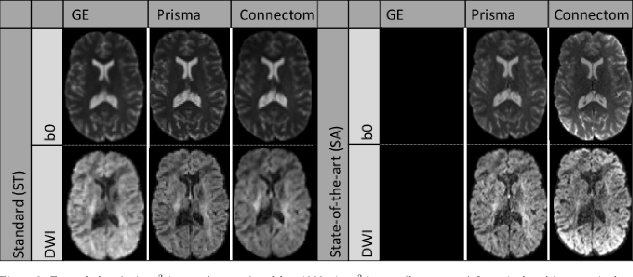 Figure 3 for Harmonization of diffusion MRI datasets with adaptive dictionary learning