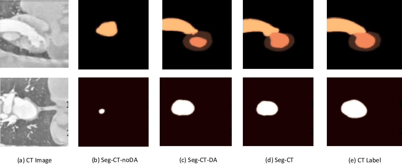 Figure 4 for Unsupervised Domain Adaptation Network with Category-Centric Prototype Aligner for Biomedical Image Segmentation