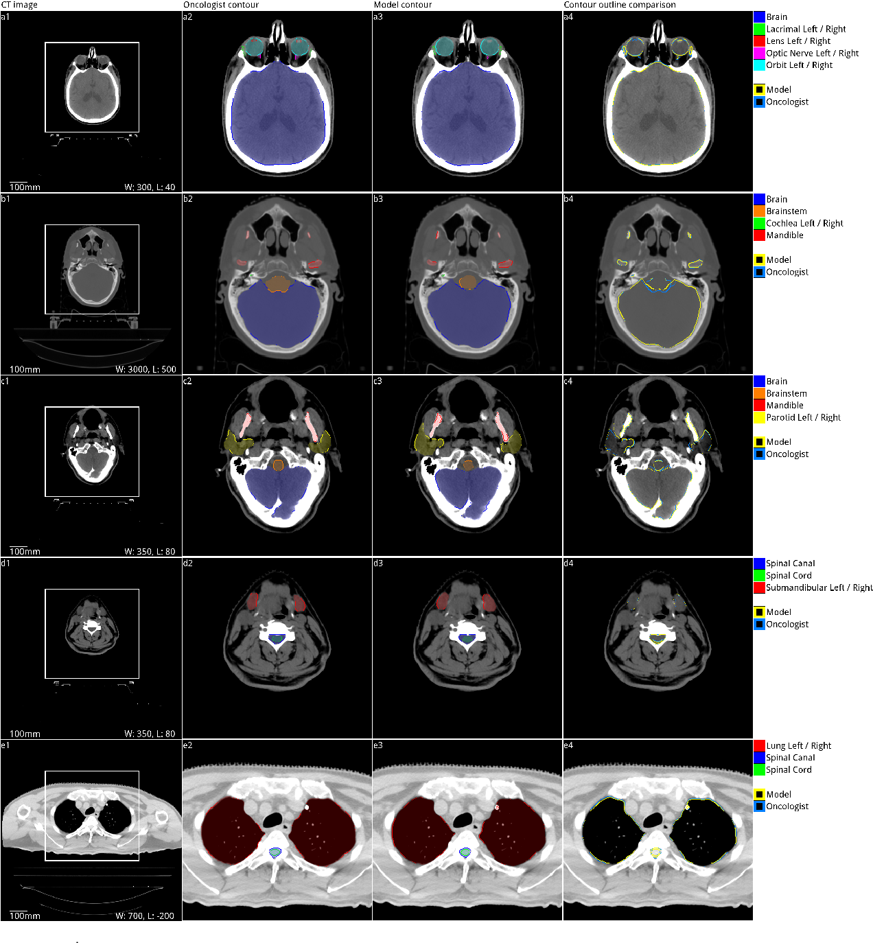 Figure 3 for Deep learning to achieve clinically applicable segmentation of head and neck anatomy for radiotherapy