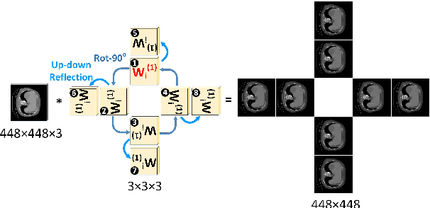 Figure 3 for Beyond CNNs: Exploiting Further Inherent Symmetries in Medical Images for Segmentation
