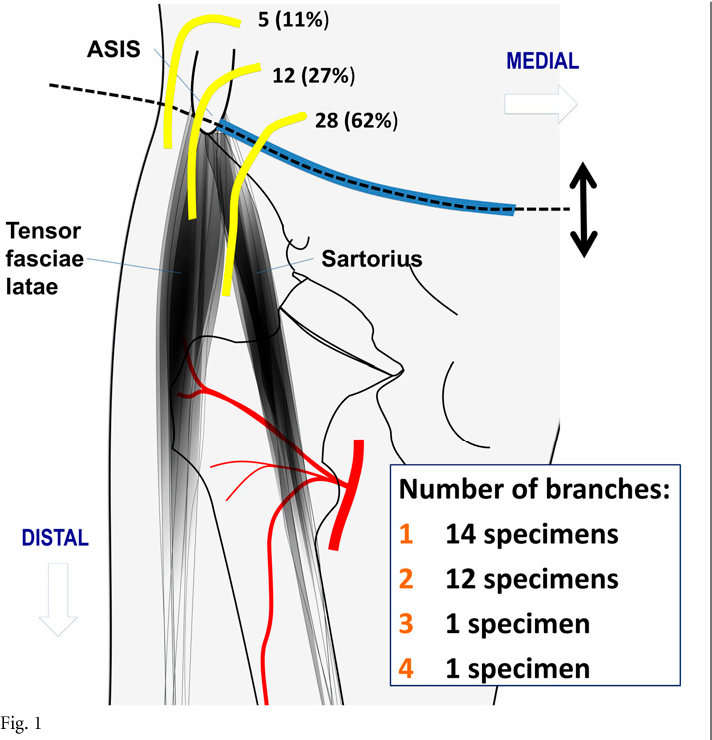 The Anatomical Course of the Lateral Femoral Cutaneous Nerve with ...