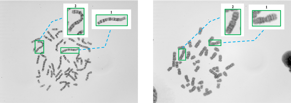 Figure 1 for DeepACC:Automate Chromosome Classification based on Metaphase Images using Deep Learning Framework Fused with Prior Knowledge
