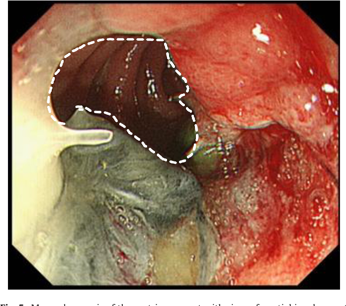 Fig. 5. Mucosal necrosis of the gastric remnant with circumferential involvement from the oral side to the anastomosis (the outside of dotted line). The mucosa of the duodenum was normal.