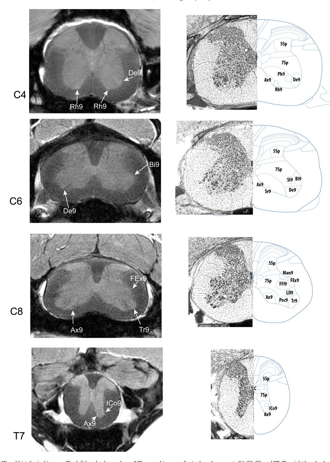 Vertebral Landmarks For The Identification Of Spinal Cord Segments