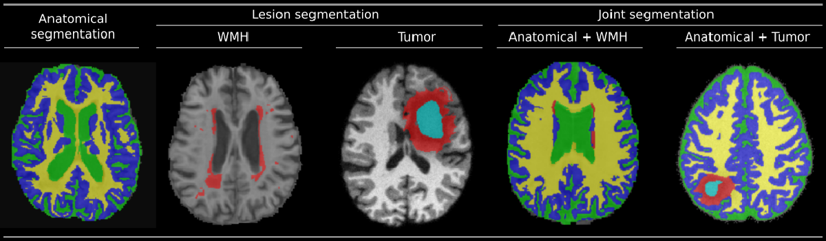 Figure 1 for Joint Learning of Brain Lesion and Anatomy Segmentation from Heterogeneous Datasets