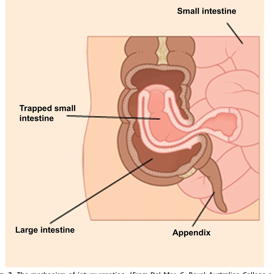 Intussusception Diagram Of Appendix Block And Schematic Diagrams