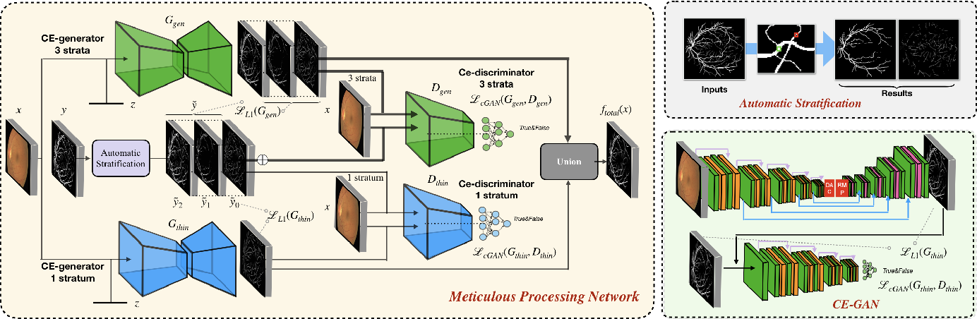 Figure 1 for A Two-Stream Meticulous Processing Network for Retinal Vessel Segmentation
