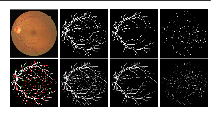 Figure 3 for A Two-Stream Meticulous Processing Network for Retinal Vessel Segmentation