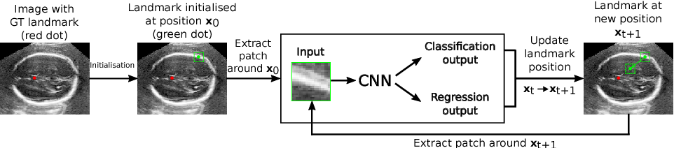 Figure 1 for Fast Multiple Landmark Localisation Using a Patch-based Iterative Network