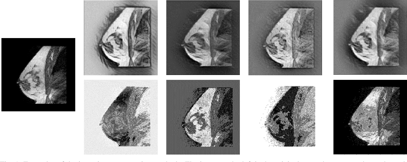 Figure 1 for Intensity augmentation for domain transfer of whole breast segmentation in MRI