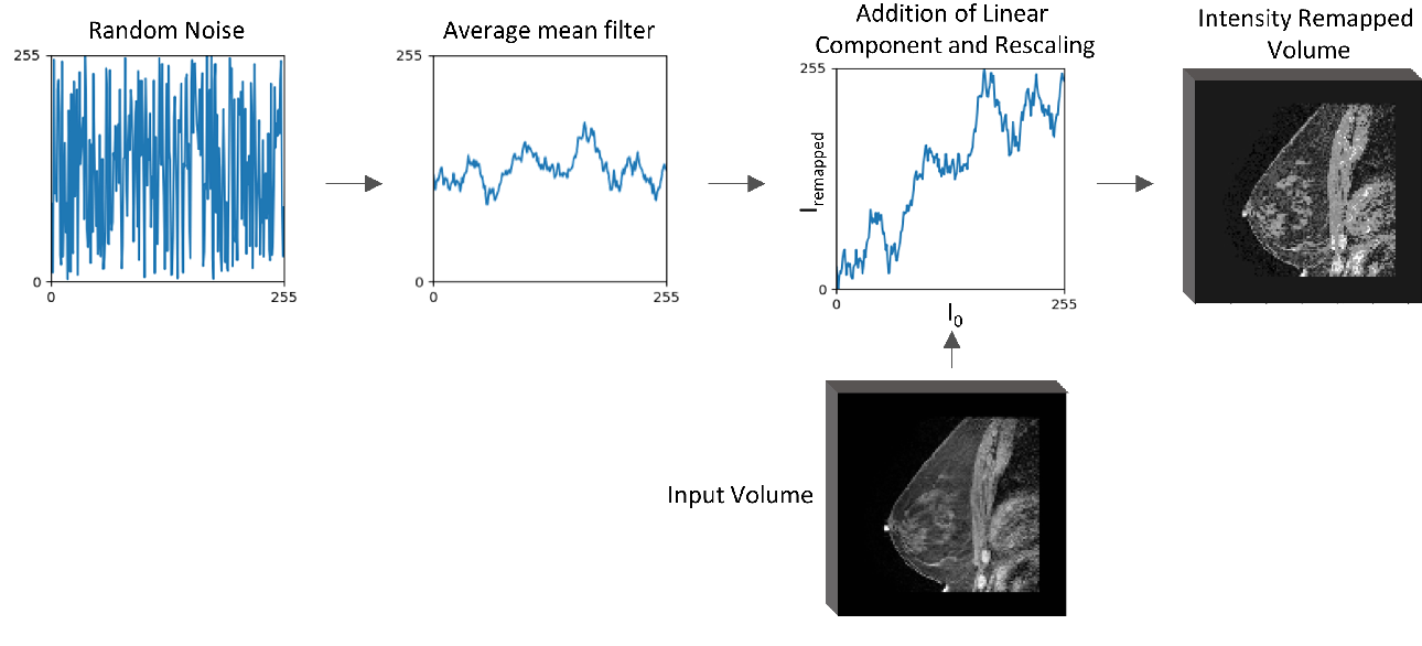 Figure 3 for Intensity augmentation for domain transfer of whole breast segmentation in MRI