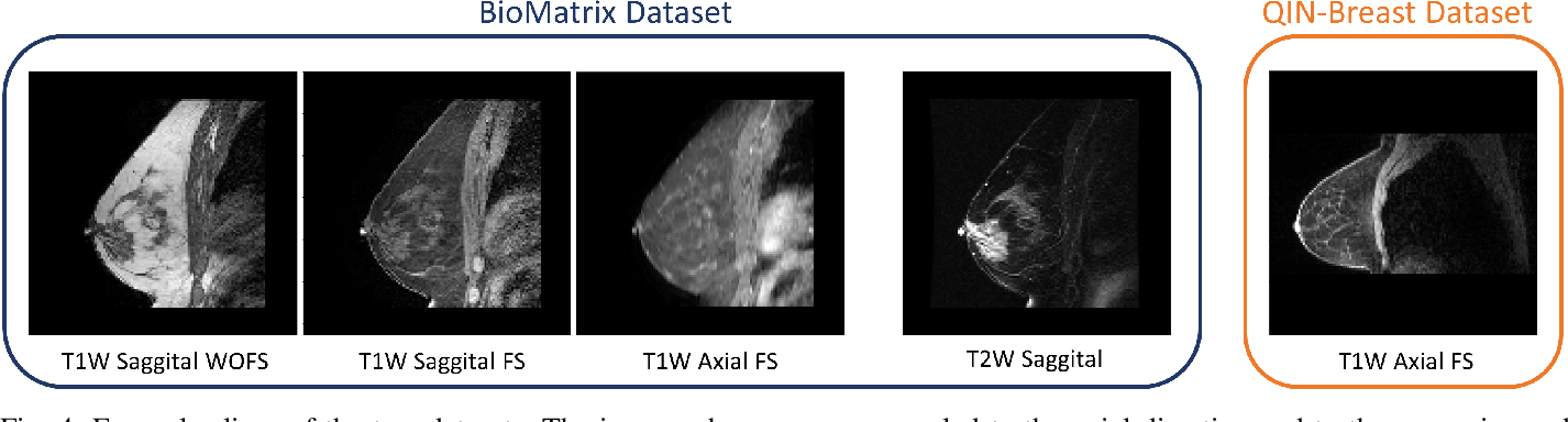 Figure 4 for Intensity augmentation for domain transfer of whole breast segmentation in MRI