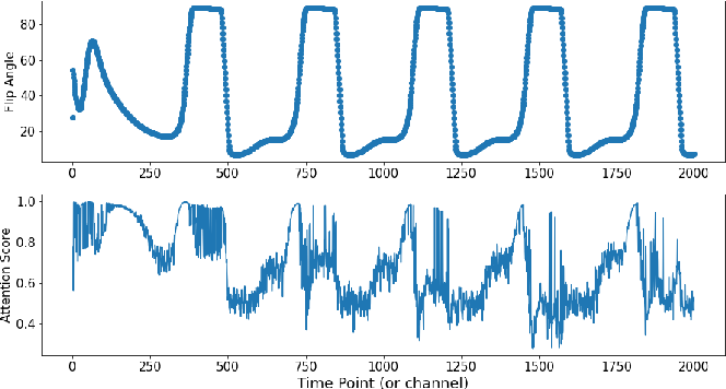 Figure 4 for Channel Attention Networks for Robust MR Fingerprinting Matching