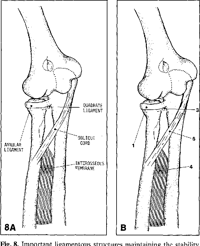 Figure 8 from Posttraumatic calcification of the annular ligament of ...