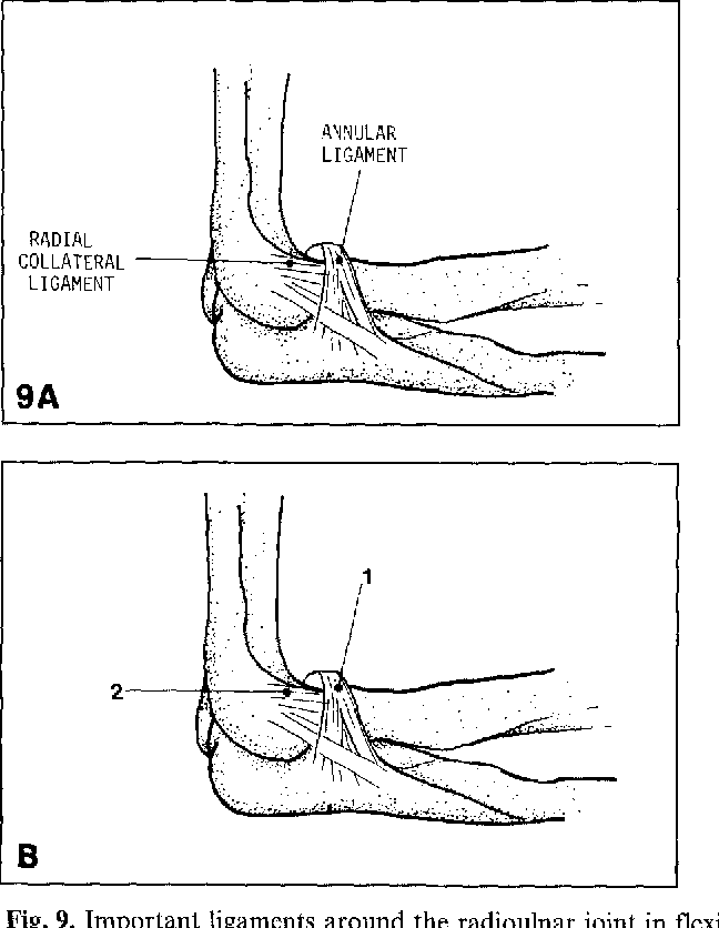 Figure 9 from Posttraumatic calcification of the annular ligament of ...