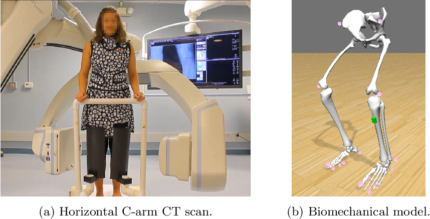 Figure 1 for Inertial Measurements for Motion Compensation in Weight-bearing Cone-beam CT of the Knee