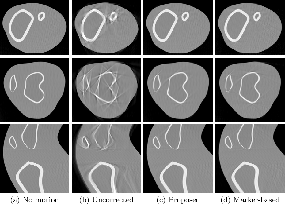 Figure 3 for Inertial Measurements for Motion Compensation in Weight-bearing Cone-beam CT of the Knee