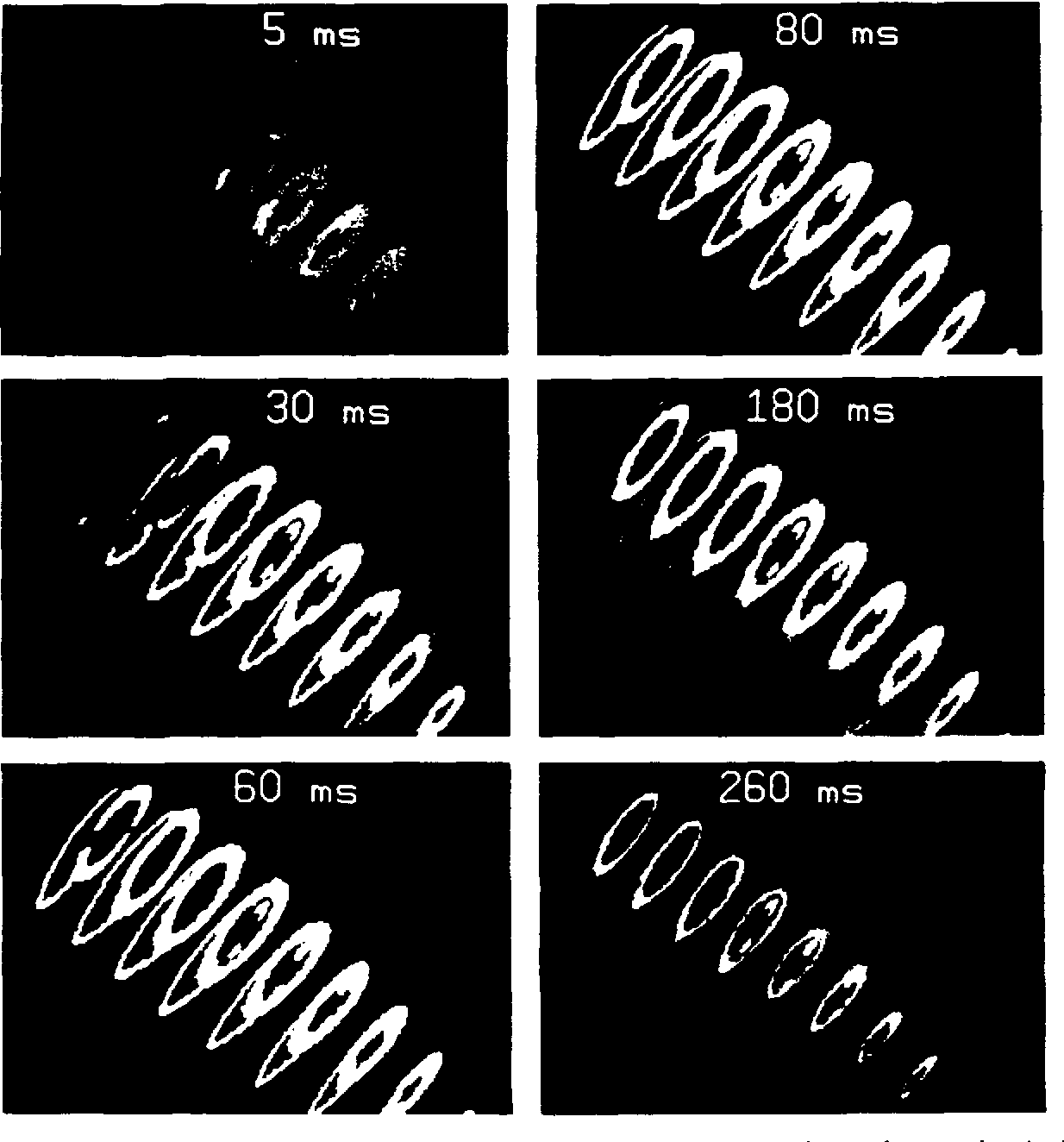 Fig. 3A. Black and white renditions of the colorgraphic output of the computer simulation of a normal excitation recovery sequence is presented here. The cross sections are selected from the complete set and are at 10 mm intervals. Each is at right angles to the long axis of the left ventricle. Thus each section as viewed from the anterior perspective reveals its underside (see Fig. 2 for orientation). Resting myocardium is dark on these sections. Excitation begins on the left septal surface in the mid portion near the junction with the apical third as shown and progresses rapidly to the endocardium of the left ventricle by 30 ms. It propagates from endocardium to epicardium. The active region at the excitation front is limited to about 3 mm. Recovery is a slower process and is more distributed. The myocardial action potential durations are adjusted in the simulation so that recovery procedes from epicardium to endocardium around the perimeter of the left ventricle. Recovery is just underway at 180 ms, has proceded to the midwall of the left ventricle by 260 ins, and is approaching the subendocardium, the last region to be repolarized.