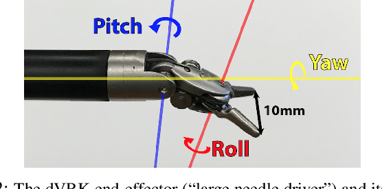 Figure 2 for Fast and Reliable Autonomous Surgical Debridement with Cable-Driven Robots Using a Two-Phase Calibration Procedure