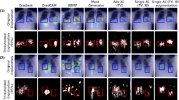 Figure 4 for Combining Similarity and Adversarial Learning to Generate Visual Explanation: Application to Medical Image Classification