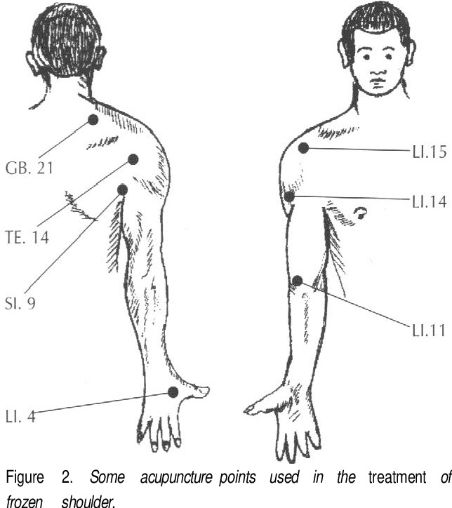 Figure 2 from acupuncture treatment approaches and a ...